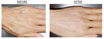 Tratamente ale mâinilor cu acid hialuronic
